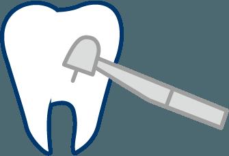 難しい歯内療法
