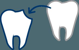 自己歯牙移植専門外来