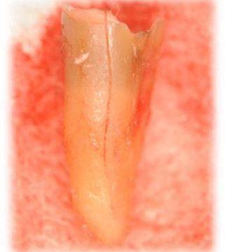 歯根破折画像1